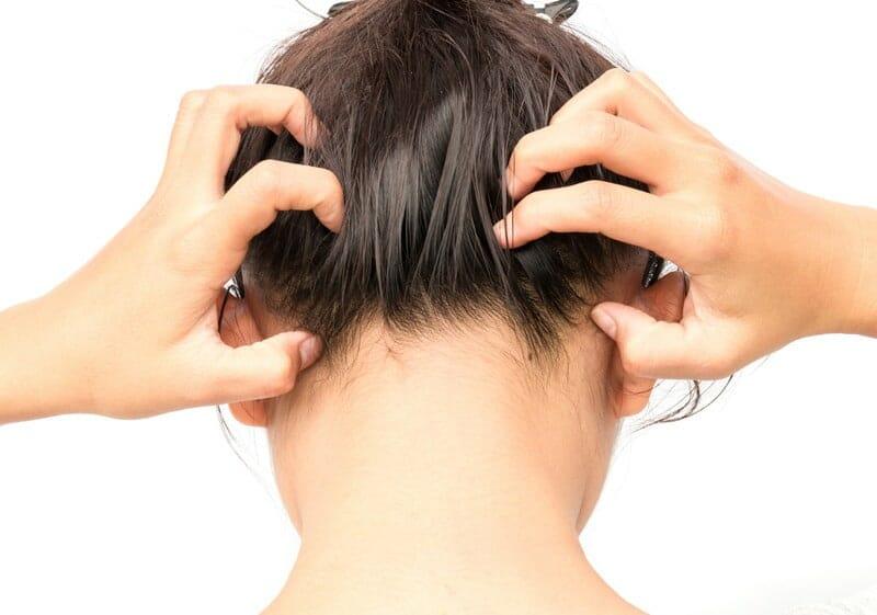 solutions démangeaisons des cheveux